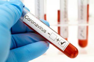 O'qituvchilar koronavirusga bepul test topshirib dorilar bilan ta'minlanmoqda